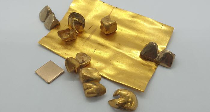 Otkup zubnog zlata